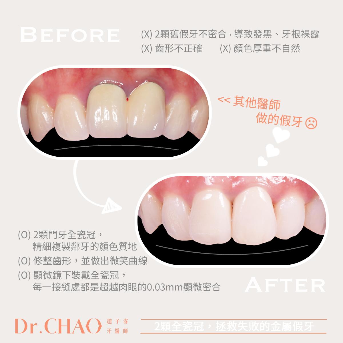 趙子睿醫師,利用2顆全瓷冠,拯救失敗的金屬假牙!