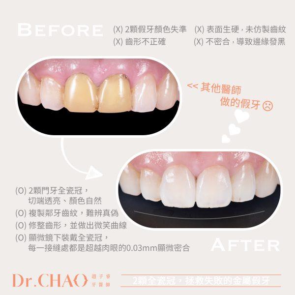 趙子睿醫師,利用2顆門牙全瓷冠,拯救失敗的金屬假牙!