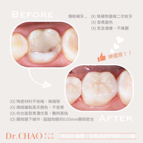 趙子睿醫師,利用微創3D齒雕來修復因傳統補牙二次蛀牙導致高度受損的大臼齒,成功還原牙齒的外形和咬合功能。