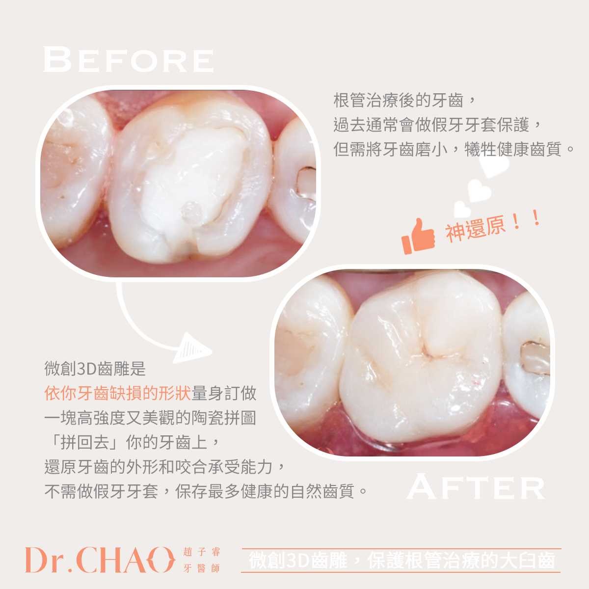 趙子睿醫師,利用微創3D齒雕來保護根管治療後的大臼齒,成功還原牙齒的外形和咬合功能。