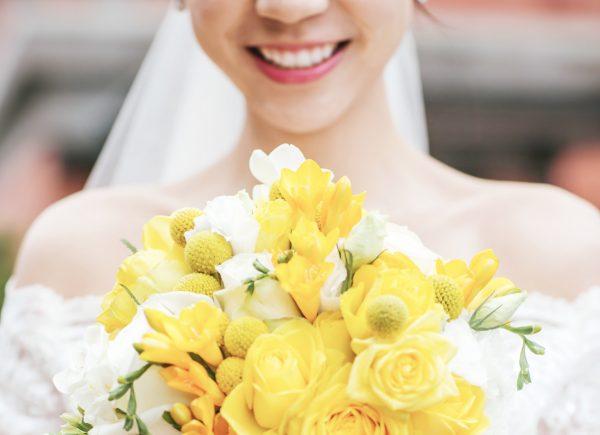 老婆冷光美白後的牙齒_婚禮當天