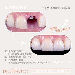 趙子睿醫師,利用單顆仿生植牙來修復缺牙,和鄰牙難辨真偽。