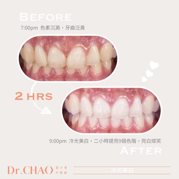 趙子睿醫師,利用冷光美白在2小時內幫助病人提亮9個美白色階,新笑容亮白迷人。