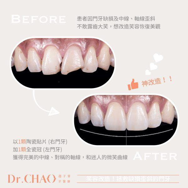 趙子睿醫師的笑容改造術,拯救患者因門牙缺損及軸線歪斜不敢露齒大笑的困擾