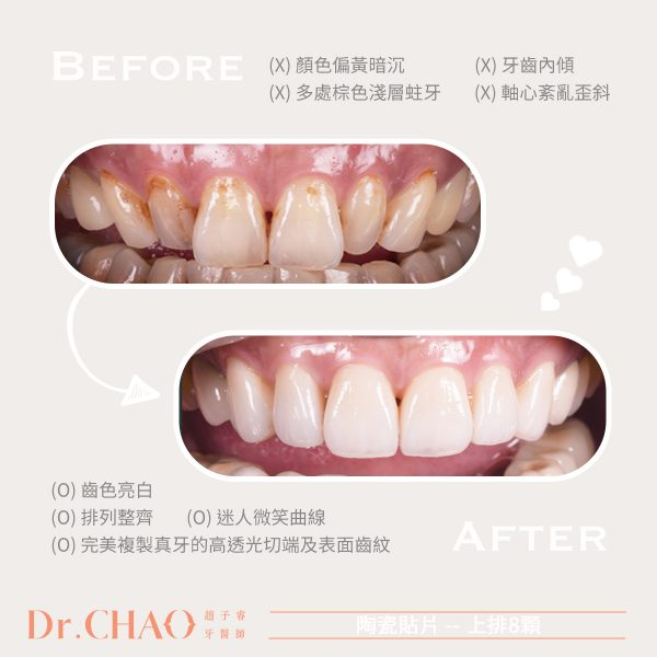 趙子睿醫師利用上排8顆陶瓷貼片,幫病人改善牙齒泛黃、排列不整、中軸歪斜內傾等問題,讓牙齒亮白整齊,並增加迷人的微笑曲線。