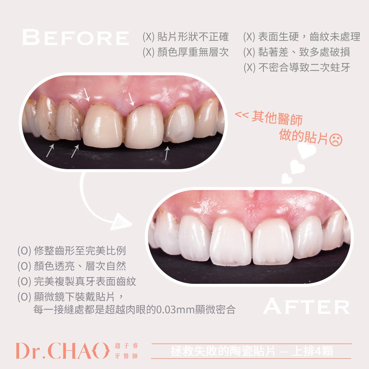 趙子睿醫師,拯救失敗的陶瓷貼片!利用上排4顆陶瓷貼片,幫病人改善舊貼片泛黃破損、二次蛀牙、顏色不佳等問題,讓牙齒自然透亮有層次如天生美齒,同時修整並加長牙齒形狀至完美比例。