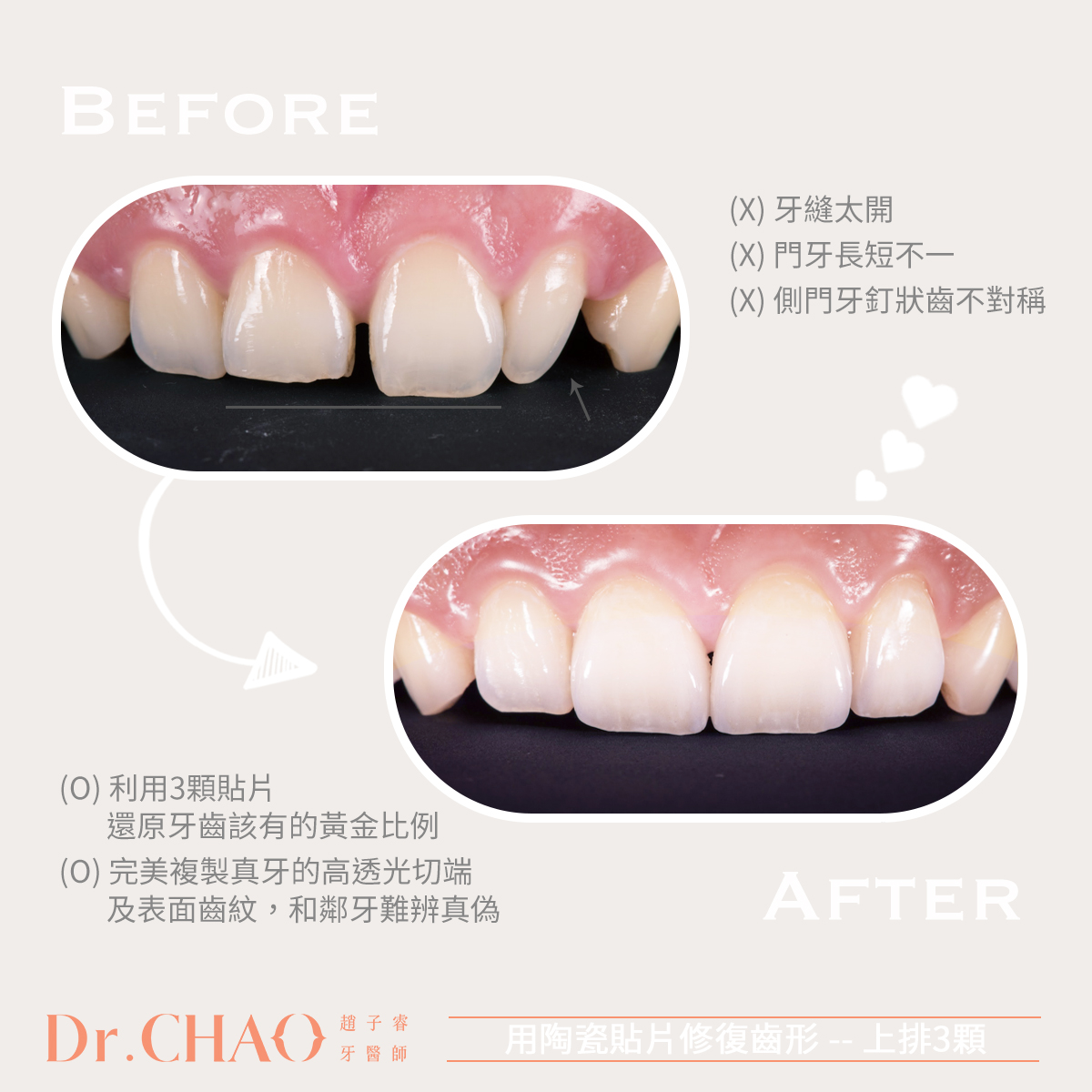 趙子睿醫師利用上排3顆仿生等級陶瓷貼片,幫病人關牙縫、還原牙齒該有的黃金比例自然形態,改善原來門牙長短不一、排列不整等問題。