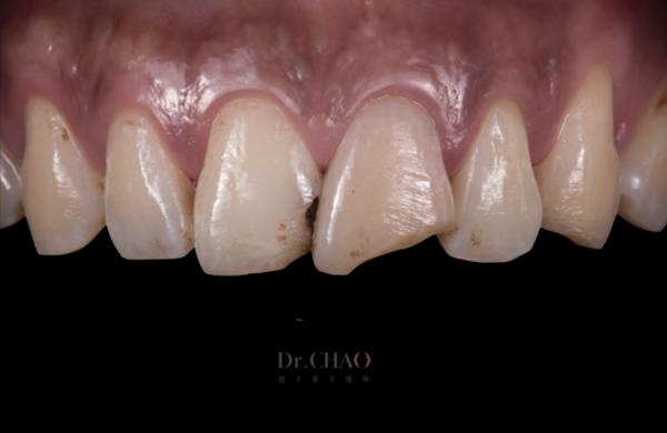 迷人笑容的秘密2-中線_患者因門牙缺損及軸線歪斜想改造笑容_治療前