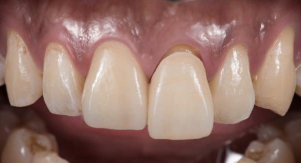 迷人笑容的秘密2--中線_患者因門牙缺損及軸線歪斜想改造笑容_趙子睿醫師治療中