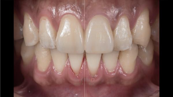 迷人笑容的秘密2--中線_患者因門牙缺損及軸線歪斜想改造笑容_趙子睿醫師治療後_中線對齊