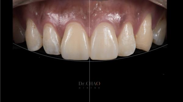 迷人笑容的秘密2--中線_患者因門牙缺損及軸線歪斜想改造笑容_趙子睿醫師治療後_完美微笑曲線