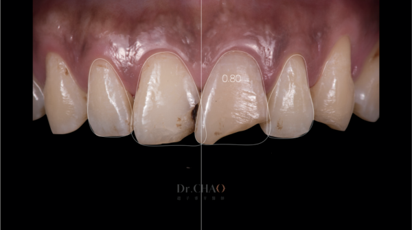 迷人笑容的秘密2--中線_患者因門牙缺損及軸線歪斜想改造笑容_趙子睿醫師設計step2