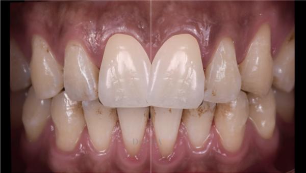 迷人笑容的秘密2--中線_患者因門牙缺損及軸線歪斜想改造笑容_趙子睿醫師設計step3