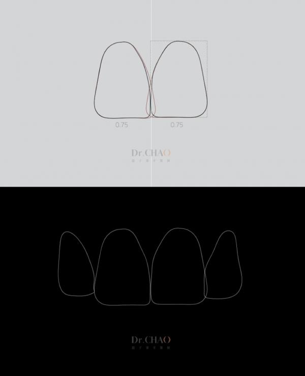 迷人笑容的秘密2--中線_患者因門牙缺損及軸線歪斜想改造笑容_趙子睿醫師設計step4