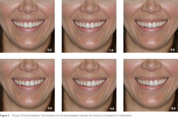 迷人笑容的秘密2--中線_模擬牙齒中線偏移的狀況