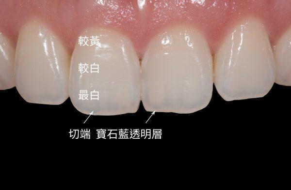 趙子睿醫師的笑容美學研究<<自然牙的顏色層次>>