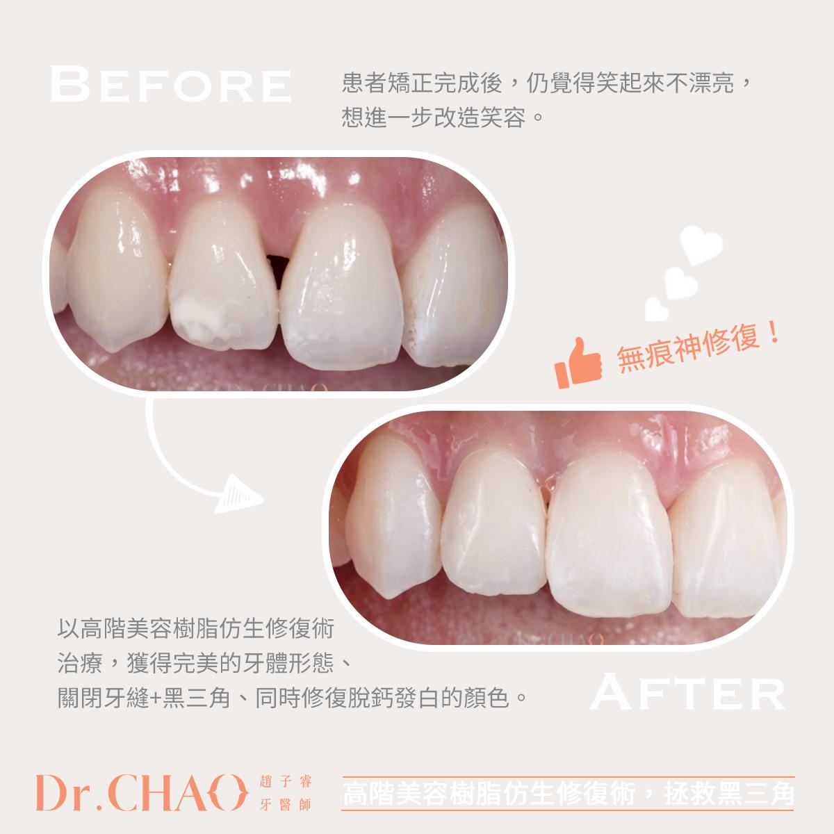 趙子睿醫師,利用高階美容樹脂仿生修復術,拯救病人嚴重影響美觀的牙縫黑三角。