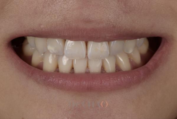 迷人笑容的秘密3--形態_患者矯正後仍覺得笑容不美觀想改造笑容_治療前