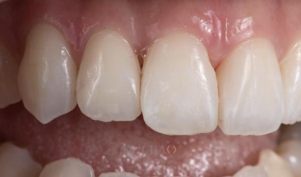 迷人笑容的秘密3--形態_患者矯正後仍覺得笑容不美觀想改造笑容_治療後2
