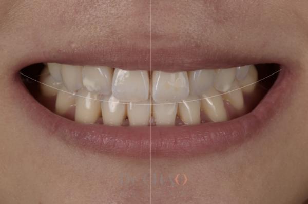 迷人笑容的秘密3--形態_患者矯正後仍覺得笑容不美觀想改造笑容_狀況分析1