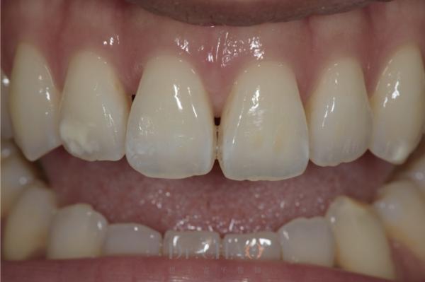迷人笑容的秘密3--形態_患者矯正後仍覺得笑容不美觀想改造笑容_狀況分析2