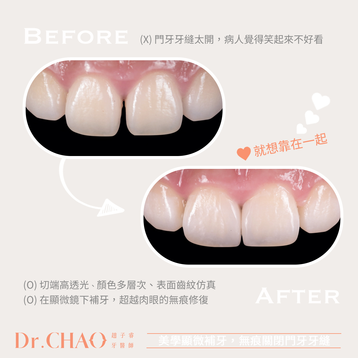 趙子睿醫師利用美學顯微補牙,成功改善病患原來門牙牙縫太開、不敢笑的困擾