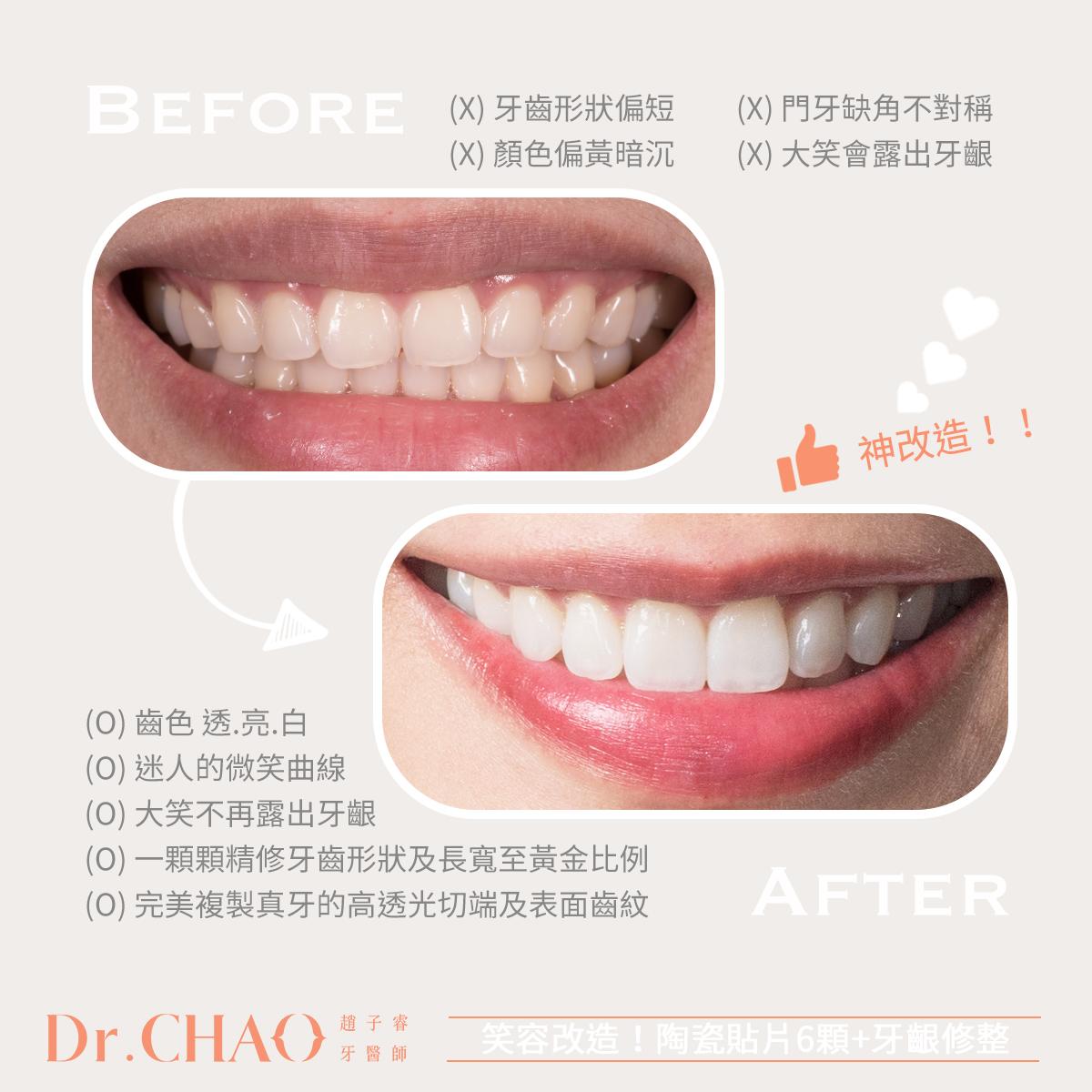 趙子睿醫師利用上排6顆陶瓷貼片加上牙齦修整,改善病患原來牙齒形狀偏短、泛黃、門牙缺損不對稱和笑齦等問題。新的笑容白皙透亮,完美展現迷人的微笑曲線。