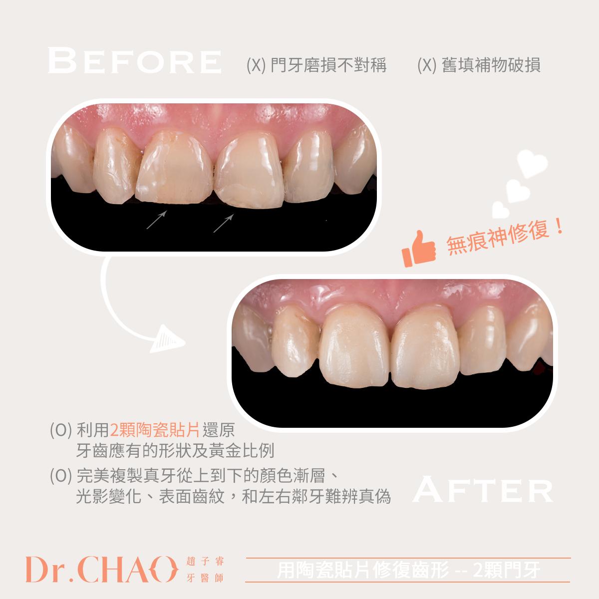 趙子睿醫師的笑容改造術,拯救患者因門牙嚴重磨耗缺損不敢露齒大笑的困擾