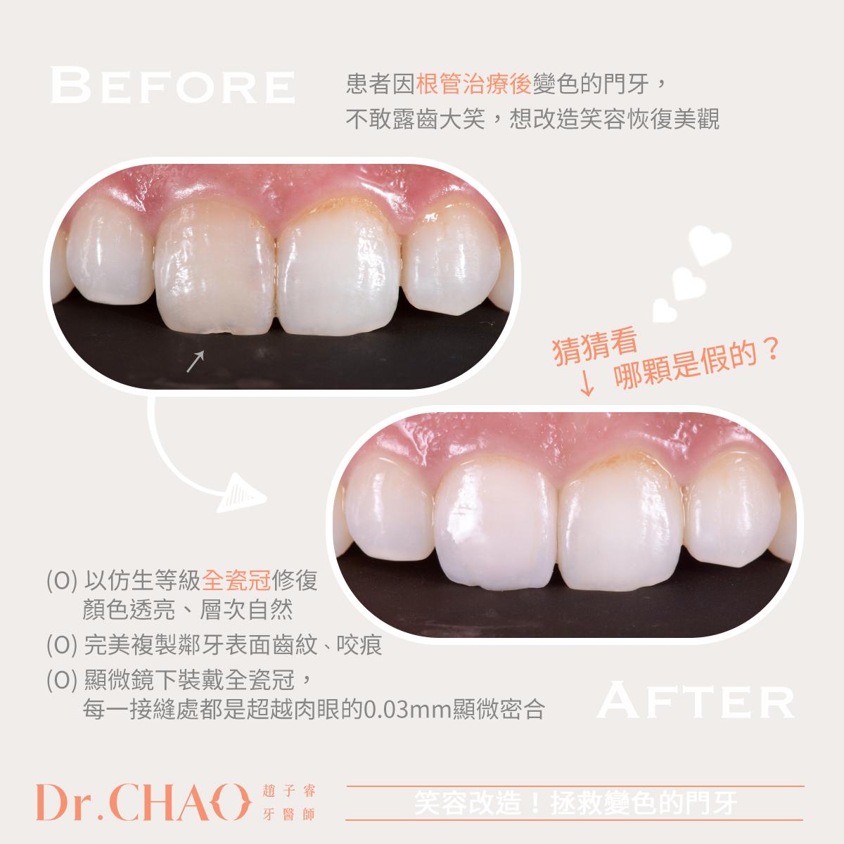 趙子睿醫師以仿生等級全瓷冠,成功拯救患者因門牙變色不敢露齒大笑的困擾