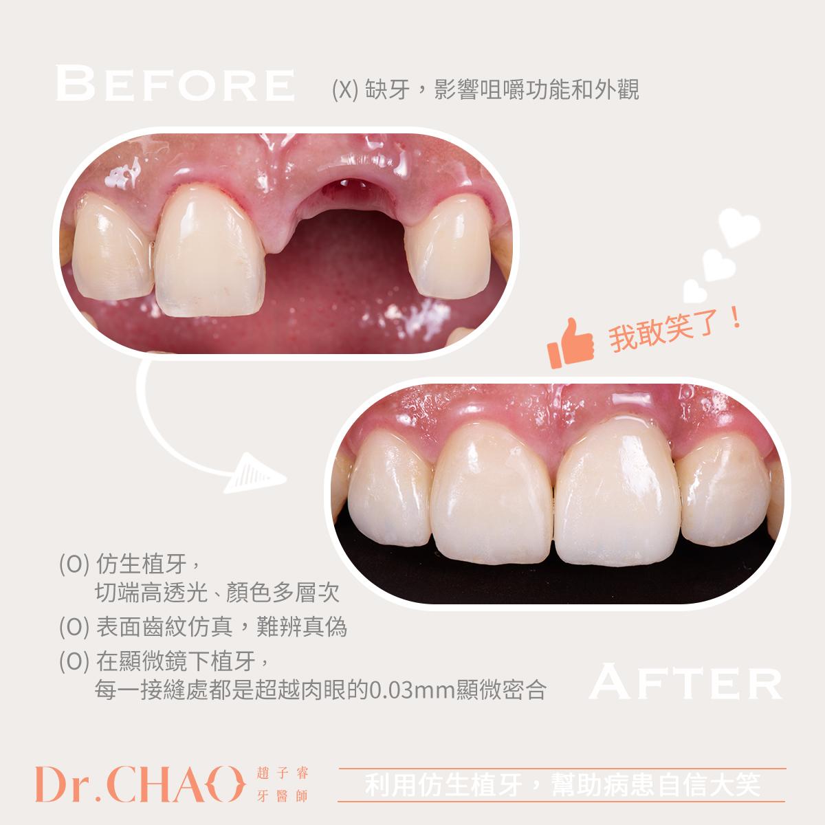 趙子睿醫師,利用仿生植牙來修復缺牙,幫助病患恢復自信、敢開口笑了