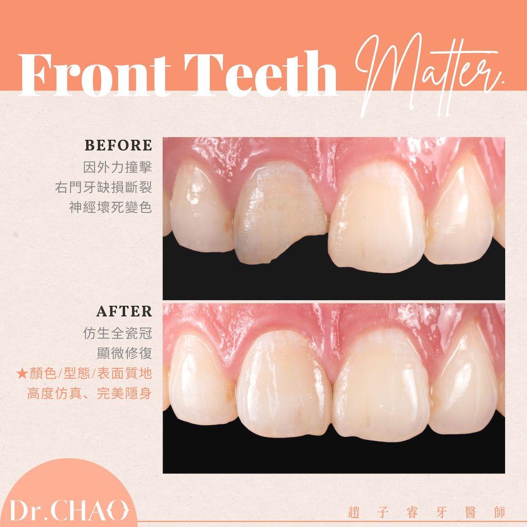 趙子睿醫師在顯微鏡下,以最困難的單顆仿生全瓷冠,精準複製鄰牙的顏色、型態、表面質地,讓這顆全瓷冠完美隱身,成功修復患者因外傷造成的右門牙缺損變色